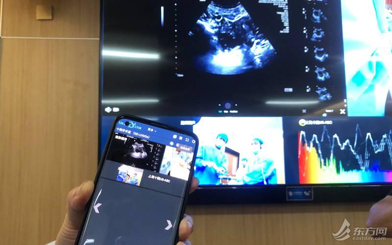 5G为智慧医疗带来了什么?远程超声会诊,AI辅助诊断