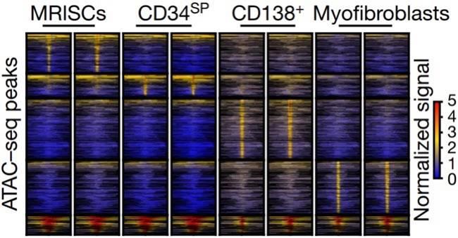 上海交大团队发现新型肠道间质细胞为肠道修复提供新思路
