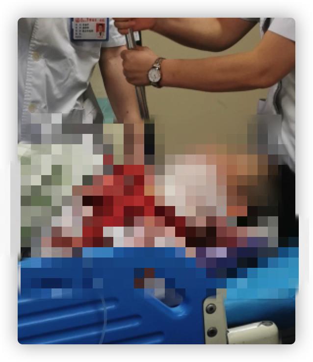 福州两名眼科医生中秋加班期间被患者割伤